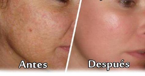 Aprendemos cómo elaborar una potente crema casera para reducir las manchas y cicatrices y unificar el rostro