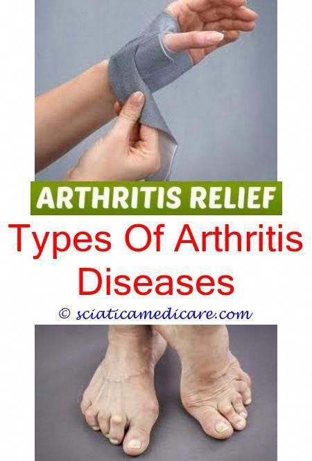 How Long Does It Take To Get Over Reactive Arthritis