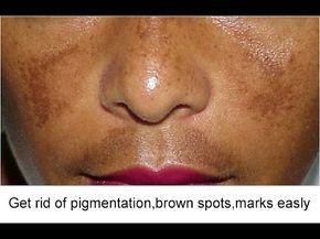 f9a61b78f0764108461c92cc8935e86b - How To Get Rid Of Acne Scars And Hyperpigmentation Naturally