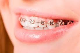 How Long Do Braces Take To Put On Dental Braces Orthodontics Braces Colors