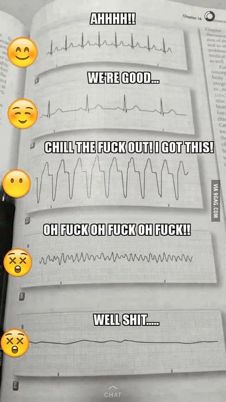 Quick way to read an EKG