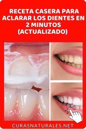 como blanquear los dientes amarillos de forma casera