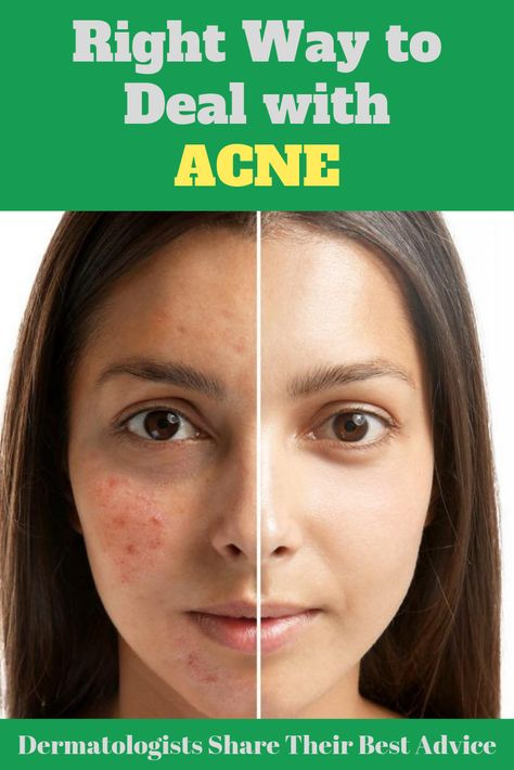 The ultimate guide to deal with adult acne the right way. Dermatologists share their best advice ever!