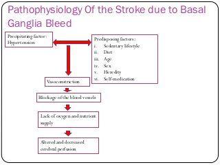 Stroke Basal Ganglia Bleed Neuroscience Basal Ganglia