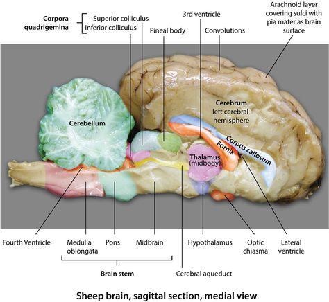 Sheep Brain Sagittal Section Medial View Brain Anatomy Sheep Brain In 2021 Brain Anatomy Sheep Human Brain Anatomy