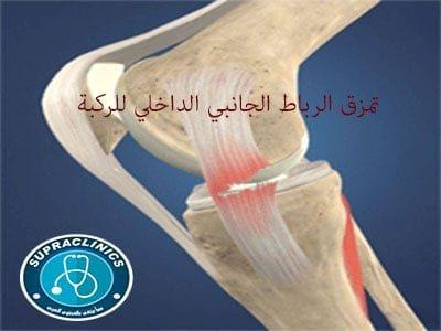 تمزق الرباط الجانبي الداخلي للركبة وعلاج تمزق الرباط الداخلي للركبة Health Medical Sprain