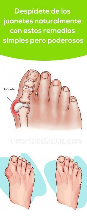 Prueba Estos Simples Pero Potentes Remedios Para Quitar Los Juanetes En Los Pies De Forma Natural Si Padeces De A Get Rid Of Bunions Natural Remedies Remedies