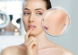 Das Richtige Make Up Bei Rosacea Gratisversand Ab 19 Flaconi In 2020 Rosazea Make Up Hautkrankheiten