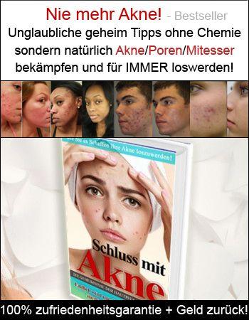 Eine Echte Sensation Grosse Poren Einfach Ganz Einfach Loswerden Mit Diesem Trick Seite 2 Von 2 Akne Mitesser Poren