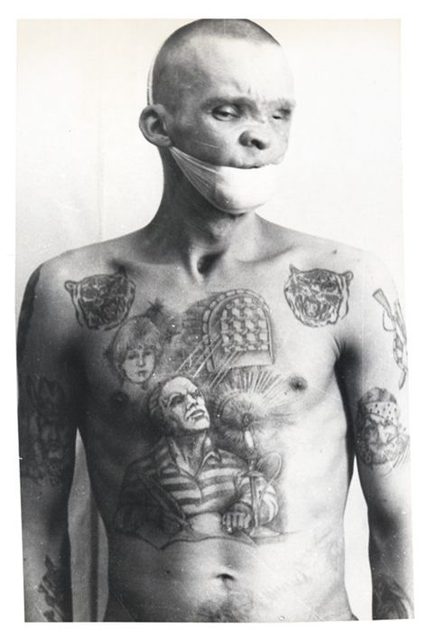 A Russian prisoner who contracted syphilis while imprisoned. Many prisoners would contract syphilis, AIDS, or tetanus while being tattooed in the Soviet penal system.