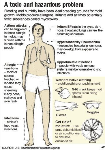 Symtoms of mold allergy