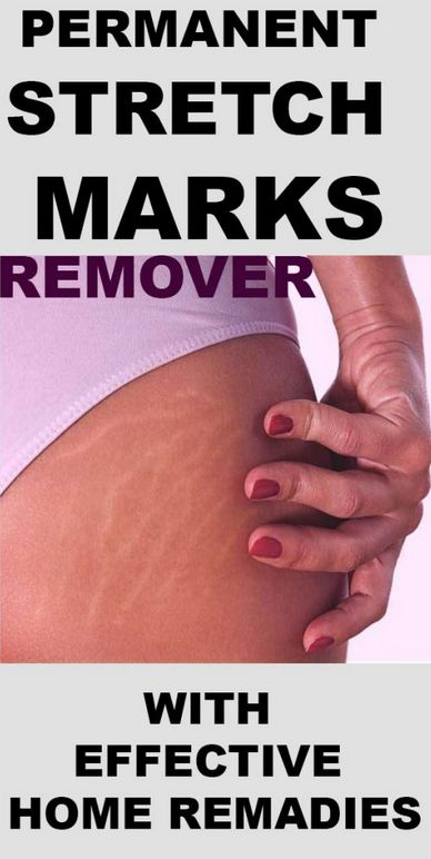 stretch marks occur when there is a rapid change in your skin due to weight gain or growth. Stretch marks can be very embarrassing at times especially obvious ones and can occur in both men and women. What Causes Stretch Marks, Stretch Marks On Thighs, Reduce Stretch Marks, How To Get Rid Of Stretch Marks, Stretch Mark Remedies, Stretch Mark Removal, Stretch Marks During Pregnancy, Best Body Scrub, Hips Dips