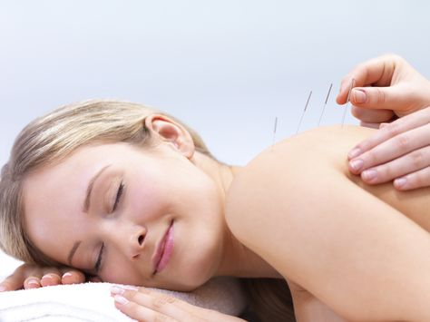 Menopause Relief with Acupuncture. It's amazing... Read More....http://mymenopausefix.com/menopause-and-acupuncture/#