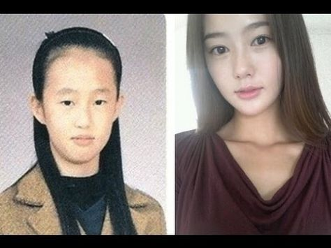 Korean Plastic Surgery Before And After Photos Good to know - plastic surgery consultant sample resume