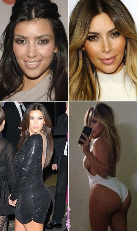 Kim Kardashian: Has She Had Plastic Surgery? — Doctors Speak Out Kim Kardashian: Has She Had Plastic Surgery? Cangello are featured in ~ check it out here:
