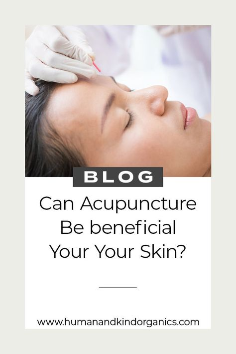 Can Acupuncture be beneficial for your skin? #facialacupuncture #skinhealth #naturaltherapies