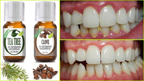 Rub these two oils on your gums and teeth and you probably will not need to go to a dentist again. Essential oils are widely used in aromatherap. Teeth Health, Healthy Teeth, Dental Health, Healthy Tips, Oral Health, Gum Health, Dental Care, Healthy Choices, Home Remedies