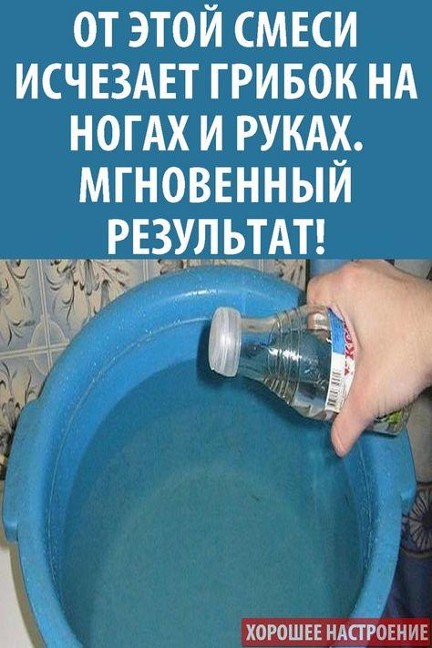varicoză ultima etapă)