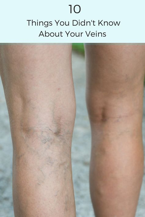 varicoseveins Varicose veins can be much...