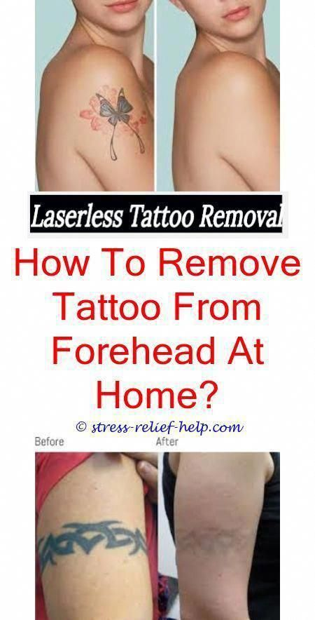 How To Numb Skin Before Tattoo Removal Tattoo Removal Boston Ma How Bad Does Laser Tattoo Removal Hurt Tattoo Removal Cost Tattoo Removal Laser Tattoo Removal