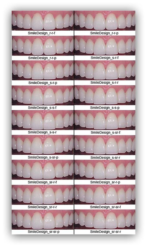 Dental implant crown dental hygiene clinic,causes of dental cavities who oral health,oral health care tips molar teeth pain relief.