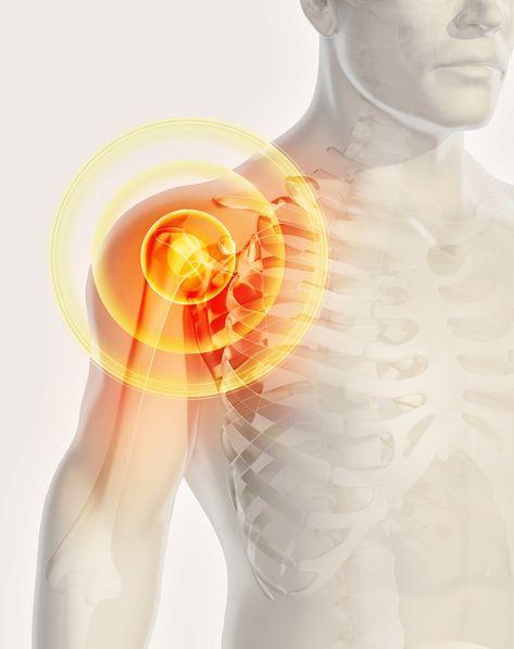Jeder Vierte leidet unter behandlungsbedürftigen Schultererkrankungen. Prof. Sven Ostermeier erklärt, wie man Schmerzen in der Schulter vorbeugen kann und was im Falle einer Erkrankung hilft.#schulterschmerzen