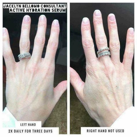 Sneaky Medical Trick To Remove A Stuck Ring Ring Stuck On Finger