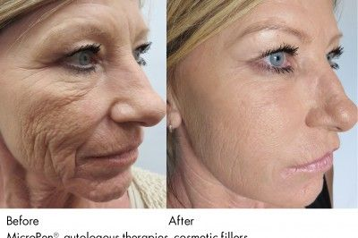 Microneedling Collagen Induction Therapy Skin Needling