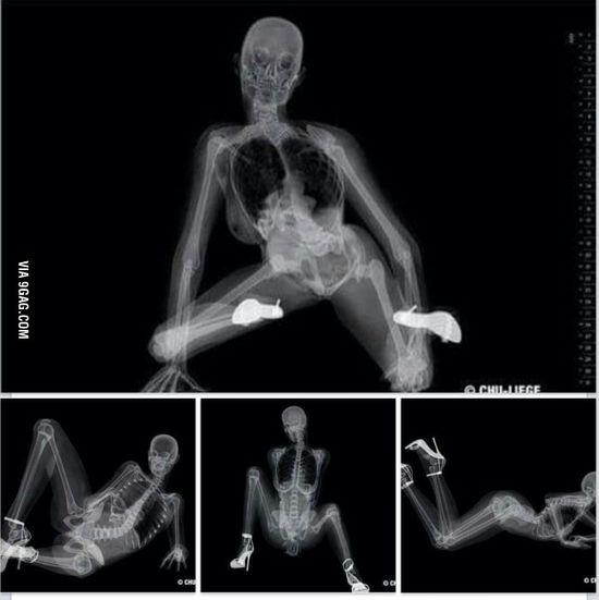 X Ray Sex