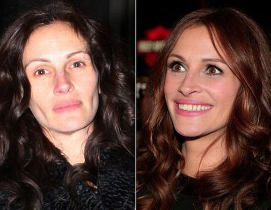 Julia Roberts.. amazing how we actually think they look perfect in real life..but they dontttt.
