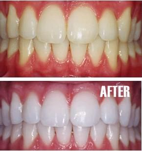 At Home Whitening  -Put a tiny bit of toothpaste into a   small cup,   mix in one teaspoon baking soda   plus one   teaspoon of hydrogen peroxide, and   half a   teaspoon water.   Thoroughly mix then brush your   teeth for two minutes. Remember to   do it once a week until you have   reached the results you want. Once   your teeth are good and white, limit   yourself to using the   whitening treatment once every   month or two.