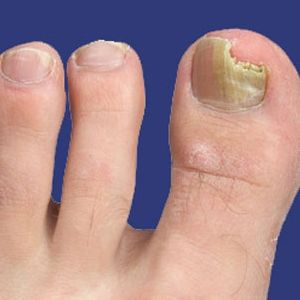 Remedies for toe nail fungus. After several remedy attempts with no success, mix