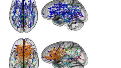 Brains of women and men show strong hard-wired differences - Male brains (above, in blue) tended to have have stronger front-to-back circuits and links between perception and action, while women had stronger left-to-right links between reasoning and intuition, according to University of Pennsylvania Perelman School of Medicine researchers who imaged the brains of 949 adolescents and young adults.