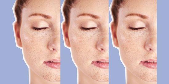 Quelle brosse nettoyante pour mon visage ? - Marie Claire