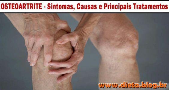TUDO SOBRE OSTEOARTRITEA osteoartrite é a forma mais comum de artrite, que afeta milhões de pessoas ao redor do mundo. A osteoartrite ocorre quando a cartilagem protetora nas extremidades de seus ossos se desgasta ao longo do tempo.Enquanto a osteoartrite pode danificar qualquer articulação em seu corpo, o distúrbio afeta ...