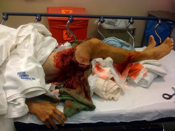 Tiger shark attack victim - photo#28