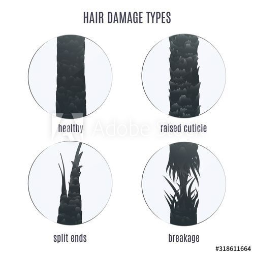 Surface Of Healthy And Damaged Hair Under The Microscope Hair Follicle Condition Closeup Set Problem Of Spli Damaged Hair Hair Follicle Hair Under Microscope