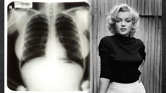 Las radiografías, que alcanzaron 10 veces su valor estimado en la subasta, fueron tomadas en 1954, cuando Marilyn tenía 28 años.