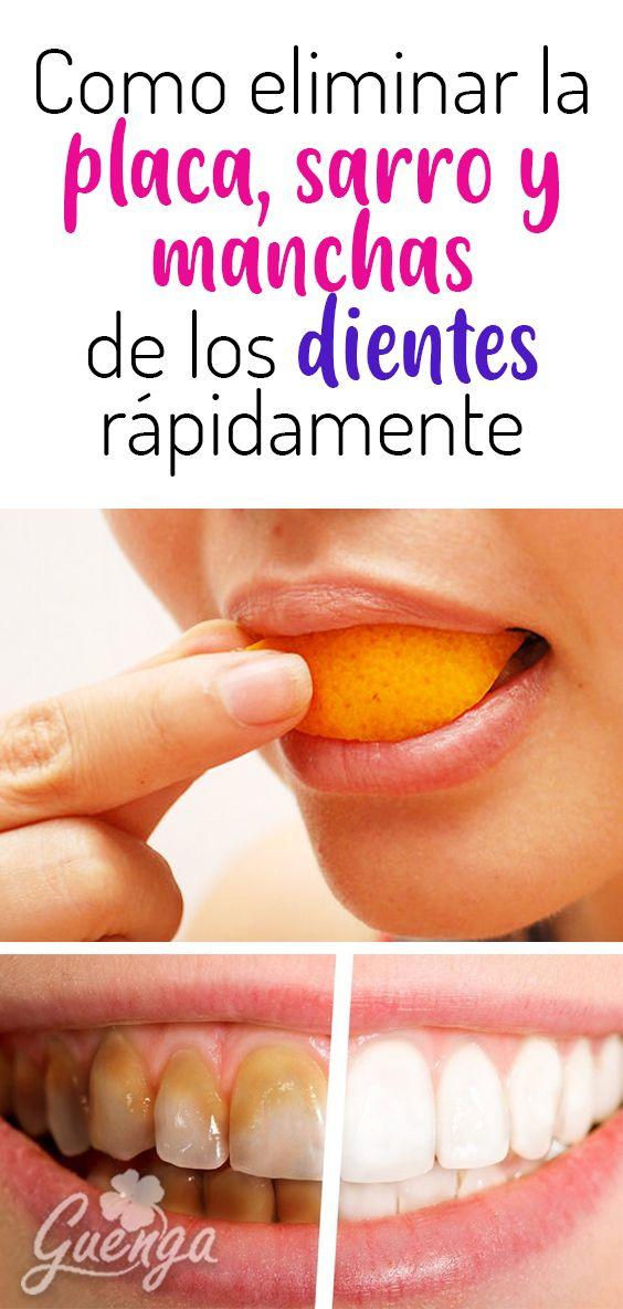 Como Eliminar El Sarro En Los Dientes Gingivitis Placa Dental Mal Aliento Gracias Este Aceite Comestible Dientes Health Tips Health Body Hacks