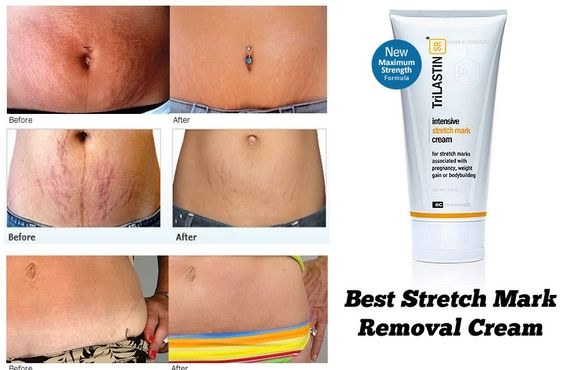 Best Stretch Mark Removal Cream. You will see visible results in just 3 weeks. #stretchmarks