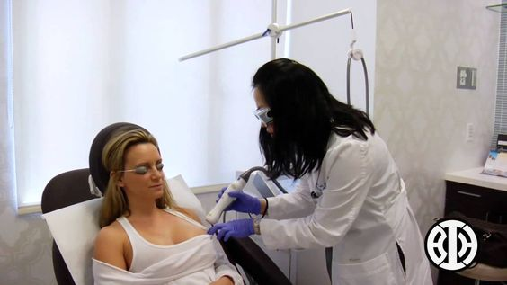 Laser Resurfacing for Stretch Marks on the Breast