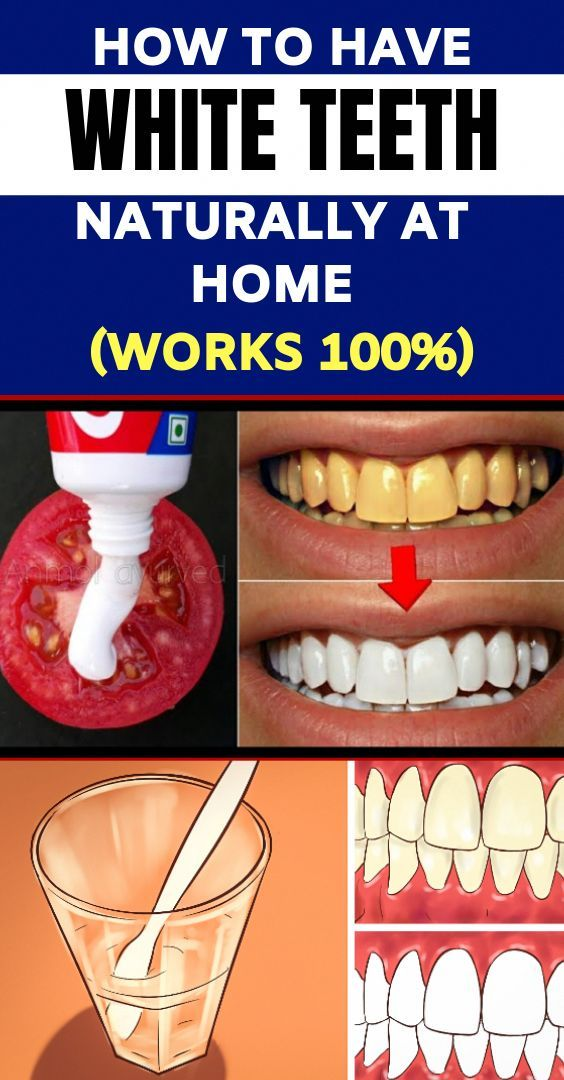 How To Get Rid Of Coffee Stains On Teeth Naturally