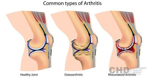 Here you will learn the most common types of #arthritis, including osteoarthritis, rheumatoid arthritis, and psoriatic arthritis.