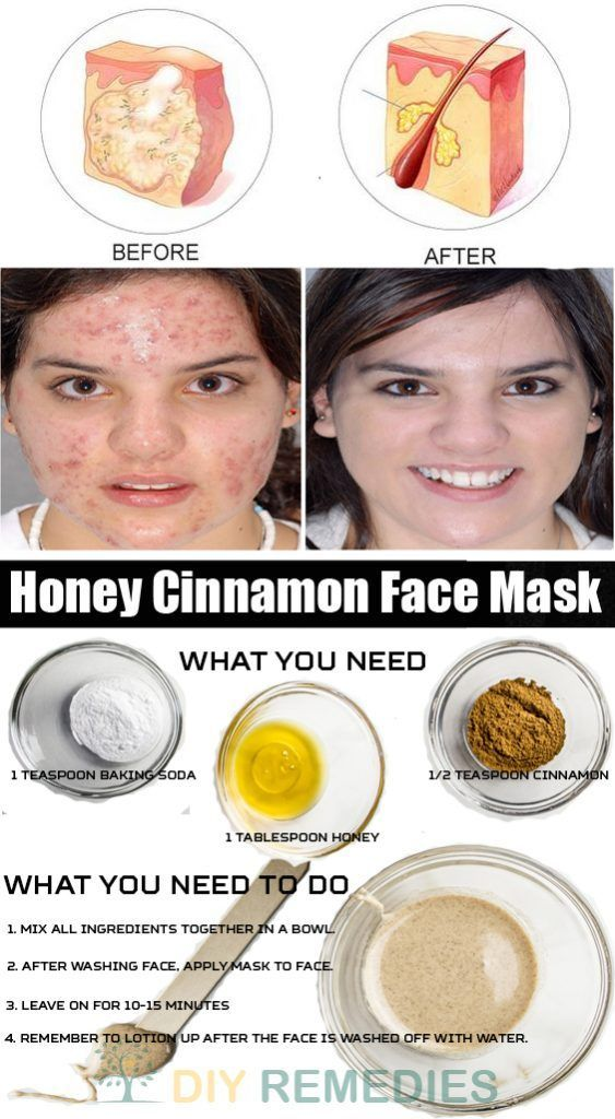 Both honey and cinnamon have antiseptic, antibacterial and anti-microbial properties that fight against the acne-causing bacteria and heal the damaged skin. Honey hydrates the skin, preserves its moisture and thus promotes the skin cell renewal. #FaceMask #Acne: