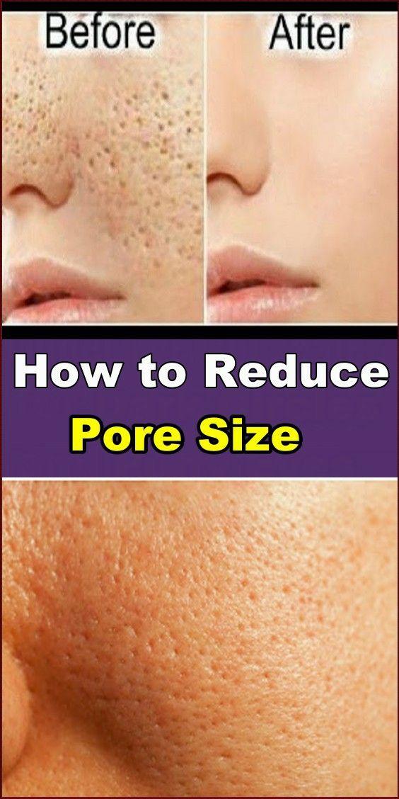 How To Reduce Pore Size Skin Name Reduce Pore Size Reduce Pores Big Pores