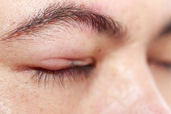 Hausmittel Gegen Geschwollene Augen Und Augenlider Trockene Haut Um Die Augen Augenlid Hausmittel