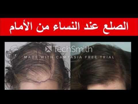 Pin On Pertes Des Cheveux