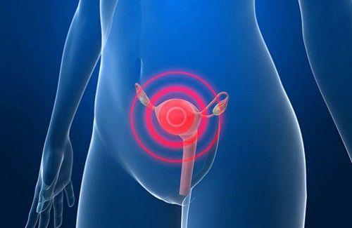 Signes avant-coureurs du cancer du col de l'utérus - Améliore ta Santé