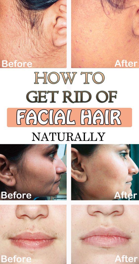 Facial hair and anorexia-7713