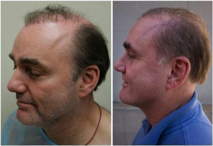 Advanced Hair Transplantation in Turkey | Hair Transplantation Clinics